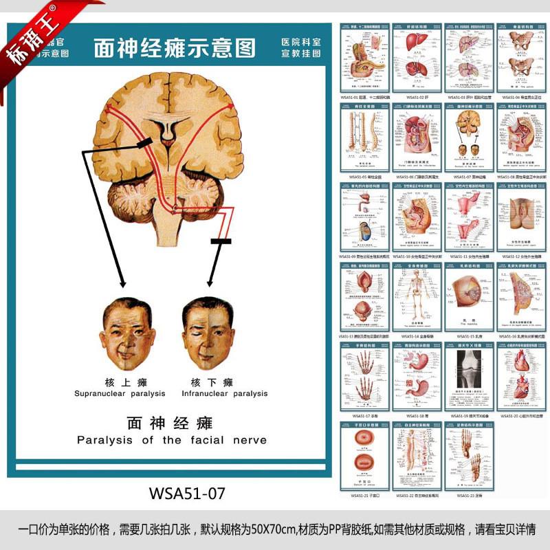 医院科室挂图人体结构解剖图,面神经瘫示意图宣传画贴画wsa51-0715044
